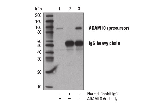 Immunoprecipitation Image 1: ADAM10 Antibody