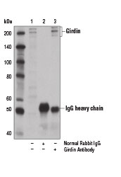 Immunoprecipitation of girdin protein from A-375 cell extracts using Normal Rabbit IgG #2729 (lane 2) or Girdin Antibody (lane 3). Lane 1 is 10% input. Western blot analysis was performed using Girdin Antibody.