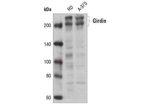 Western blot analysis of extracts from RD and A-375 cells using Girdin Antibody.