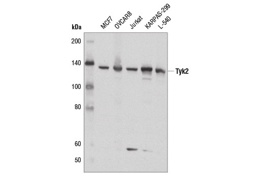 Western blot analysis of extracts from various cell lines using Tyk2 (D4I5T) Rabbit mAb.