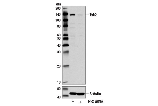 Western blot analysis of extracts from MCF7 cells, transfected with 100 nM SignalSilence<sup>®</sup> Control siRNA (Unconjugated) #6568 (-) or SignalSilence<sup>®</sup> Tyk2 siRNA #14254 (+), using Tyk2 (D4I5T) Rabbit mAb (upper) or β-Actin (D6A8) Rabbit mAb #8457 (lower). The Tyk2 (D4I5T) Rabbit mAb confirms silencing of Tyk2 expression, while the β-Actin (D6A8) Rabbit mAb is used as a loading control.