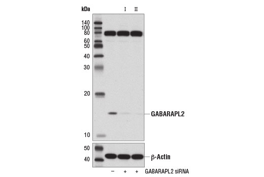 Western blot analysis of extracts from 293T cells, transfected with 100 nM SignalSilence<sup>®</sup> Control siRNA (Unconjugated) #6568 (-), SignalSilence<sup>®</sup> GABARAPL2 siRNA I # 14239 (+) or SignalSilence® II GABARAPL2 siRNA II #14246 (+), using GABARAPL2 (D1W9T) Rabbit mAb (upper) or β-Actin (D6A8) Rabbit mAb #8457 (lower). The GABARAPL2 (D1W9T) Rabbit mAb confirms silencing of GABARAPL2, while the β-Actin (D6A8) Rabbit mAb is used as a loading control.