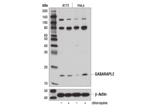 Western blot analysis of extracts from A172 and HeLa cells, untreated (-) or treated overnight with chloroquine (50 μM) (+), using GABARAPL2 (D1W9T) Rabbit mAb (upper) or β-Actin (D6A8) #8457 (lower).
