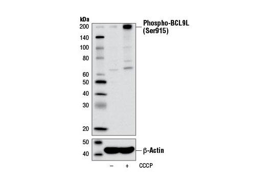 Polyclonal Antibody - Phospho-BCL9L (Ser915) Antibody - Western Blotting, UniProt ID Q86UU0, Entrez ID 283149 #13325 - #13325