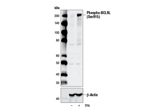 Western blot analysis of extracts from MCF7 cells, untreated (-) or treated with TPA #4174 (200 nM, 30 min; +), using Phospho-BCL9L (Ser915) Antibody (upper) or β-Actin (D6A8) Rabbit mAb #8457 (lower).