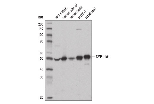 Western blot anlaysis of extracts from NCI-H295R cells, MLTC-1 cells, and various tissues using CYP11A1 (D8F4F) Rabbit mAb.