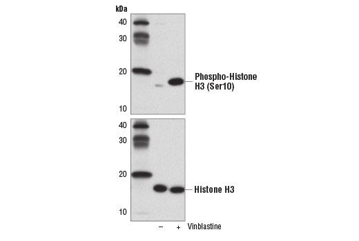 Chemical Modulators - Vinblastine - 5 mg #14255, Cell Cycle / Checkpoint Control