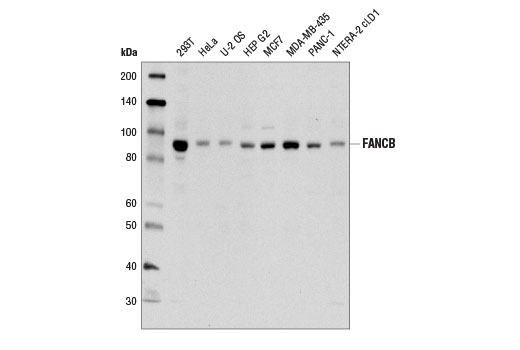 Western blot analysis of extracts from various cell types using FANCB (D9W6S) Rabbit mAb.