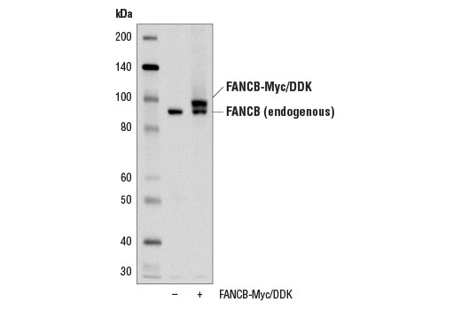 Western blot analysis of extracts from 293T cells, mock transfected (-) or transfected with a construct expressing Myc/DDK-tagged full-length human FANCB (FANCB-Myc/DDK; +) protein, using FANCB (D9W6S) Rabbit mAb.