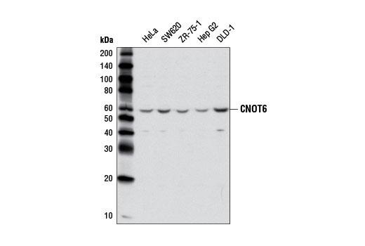 Monoclonal Antibody - CNOT6 (E1L8F) Rabbit mAb - Western Blotting, UniProt ID Q9ULM6, Entrez ID 57472 #13415 - Primary Antibody Conjugates