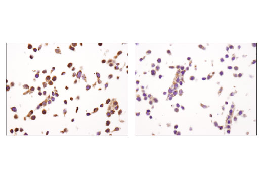 Immunohistochemical analysis of paraffin-embedded HT-29 cells, untreated (left) or mithramycin A-treated (right), using XIAP (D2Z8W) Rabbit mAb.