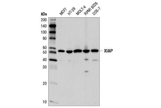 Western blot analysis of extracts from various cell lines using XIAP (D2Z8W) Rabbit mAb.