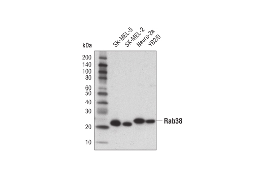Western blot analysis of extracts from various cell lines using Rab38 (D2V9Z) Rabbit mAb.