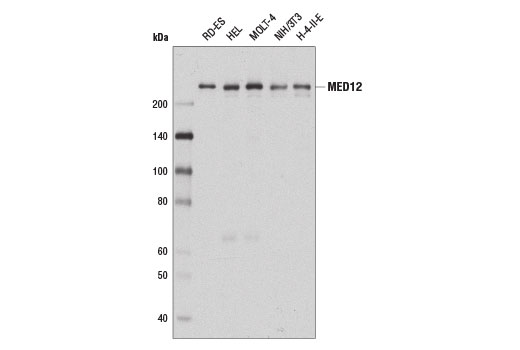 Western blot analysis of extracts from various cell lines using MED12 (D9K5J) Rabbit mAb.