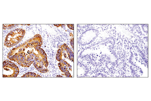 Immunohistochemical analysis of paraffin-embedded human colon carcinoma using OLFM4 (D1E4M) XP<sup>®</sup> Rabbit mAb in the presence of control peptide (left) or antigen-specific peptide (right).