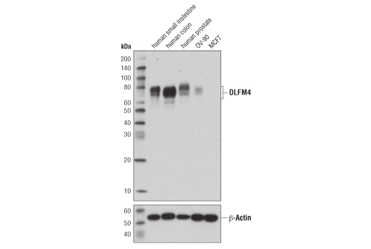 Western blot analysis of extracts from human small intestine, colon, and prostate, and two human cancer cell lines (OV-90 and MCF7), using OLFM4 (D1E4M) XP<sup>®</sup> Rabbit mAb (upper) and β-actin (D6A8) Rabbit mAb #8457 (lower). As expected, OLFM4 protein expression is not detected in MCF7 cells.