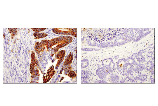 Immunohistochemical analysis of paraffin-embedded human colon carcinoma, stage I (left) and stage IV (right) using OLFM4 (D1E4M) XP<sup>®</sup> Rabbit mAb. Note the stronger expression in the tumor of the stage I case compared to the stage IV case.
