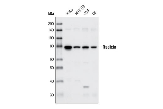 Western blot analysis of extracts from various cell types using Radixin (C4G7) Rabbit mAb.