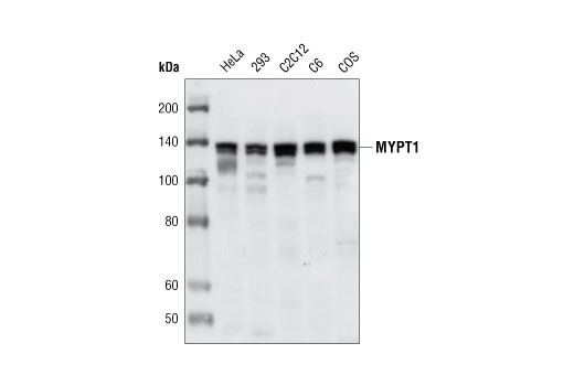 Western blot analysis of extracts from various cell types using MYPT1 Antibody.