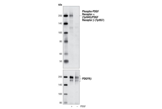 Western blot analysis of NIH/3T3 cells, untreated or treated with PDGFbb using Phospho-PDGF Receptor α (Tyr849)/PDGF Receptor β (Tyr857) (C43E9) Rabbit mAb (upper) and PDGF Receptor β (28E1) Rabbit mAb #3169 (lower).