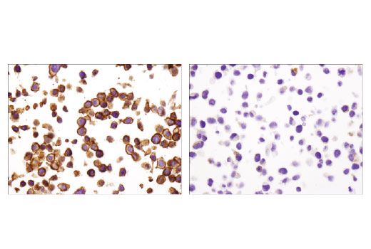 Immunohistochemical analysis of paraffin-embedded HT-29 (left) and HeLa (right) cells using EpCAM (D9S3P) Rabbit mAb (IHC Preferred).
