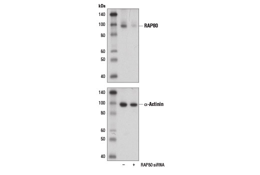 Western blot analysis of extracts from 293T cells, transfected with 100 nM SignalSilence<sup>®</sup> Control siRNA (Unconjugated) #6568 (-) or SignalSilence<sup>®</sup> RAP80 siRNA #14519 (+), using RAP80 (D1T6Q) Rabbit mAb (upper) and α-Actinin (D6F6) XP<sup>®</sup> Rabbit mAb #6487 (lower).