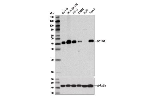 Western blot analysis of extracts from various cell lines using CYR61 (D4H5D) XP<sup>®</sup> Rabbit mAb (upper) and β-Actin (D6A8) Rabbit mAb #8457 (lower). As expected, MCF7 cells are negative for CYR61 expression.
