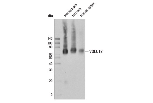 Western blot analysis of extracts from mouse brain, rat brain, and human cortex using VGLUT2 (D4E3U) Rabbit mAb.