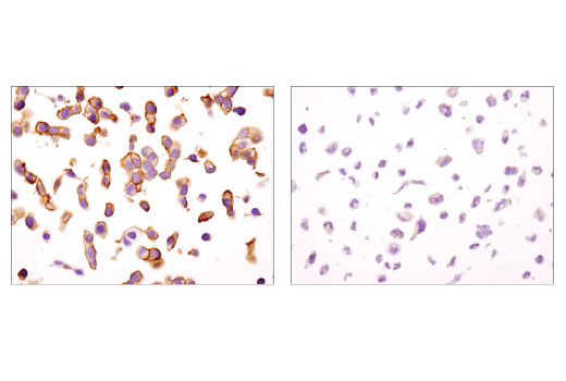 Immunohistochemical analysis of paraffin-embedded MCF7 (left) and SK-UT-1 (right) cell pellets using IGF-I Receptor β (D4O6W) Rabbit mAb (IHC Preferred).