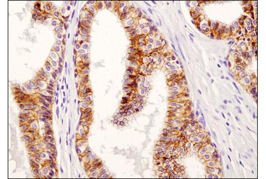 Immunohistochemical analysis of paraffin-embedded human prostate adenocarcinoma using IGF-I Receptor β (D4O6W) Rabbit mAb (IHC Preferred).