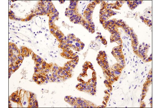 Monoclonal Antibody - IGF-I Receptor β (D4O6W) Rabbit mAb (IHC Preferred), UniProt ID P08069, Entrez ID 3480 #14534 - Metabolism