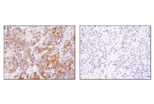 Immunohistochemical analysis of paraffin-embedded human breast carcinoma using INPP4b (D9K1B) XP<sup>®</sup> Rabbit mAb in the presence of control peptide (left) or antigen-specific peptide (right).