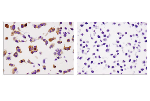 Immunohistochemical analysis of paraffin-embedded MCF7 (left) or HeLa (right) cell pellets using INPP4b (D9K1B) XP<sup>®</sup> Rabbit mAb.