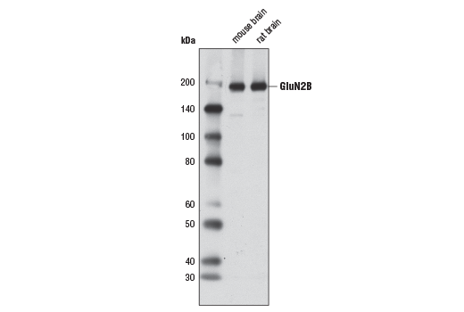 Western blot analysis of extracts from mouse and rat brain using NMDA Receptor2B (GluN2B) (D8E10) Rabbit mAb.