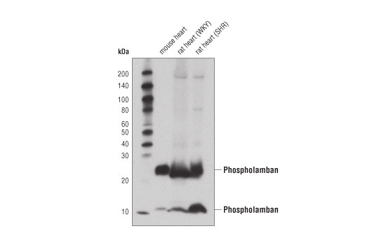 Western blot analysis of extracts from mouse heart and 16-month old control (WKY) and spontaneous hypertensive (SHR) rat hearts using Phospholamban (D9W8M) Rabbit mAb.