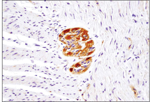 Immunohistochemical analysis of paraffin-embedded human small intestine using Ret (E1N8X) XP<sup>®</sup> Rabbit mAb. Note the positive signal of the myenteric plexus in the muscularis externa of the small intestine.