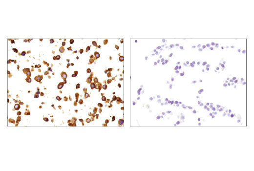 Immunohistochemical analysis of paraffin-embedded TT (left) or Hep G2 (right) cell pellets using Ret (E1N8X) XP<sup>®</sup> Rabbit mAb.