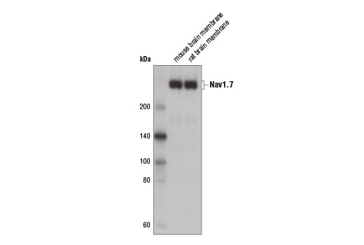 Western blot analysis of mouse and rat brain membrane extracts using Nav1.7 Antibody.