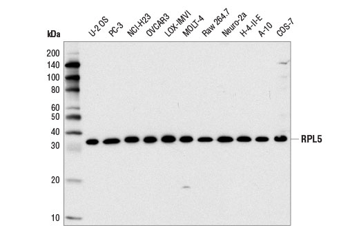 Western blot analysis of extracts from various cell lines using RPL5 Antibody.