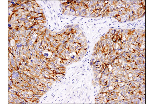 Immunohistochemical analysis of paraffin-embedded human granulosa cell tumor of the ovary using B7-H4 (D1M8I) XP<sup>®</sup> Rabbit mAb.