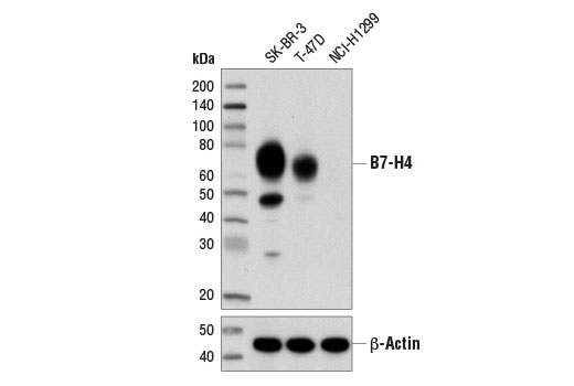 Western blot analysis of extracts from SK-BR-3, T-47D, and NCI-H1299 cells using B7-H4 (D1M8I) XP<sup>®</sup> Rabbit mAb (upper) or β-Actin (D6A8) Rabbit mAb #8457 (lower).
