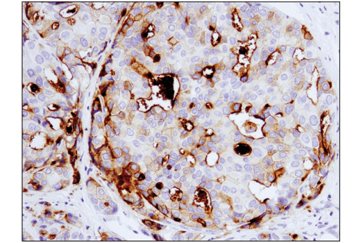 Immunohistochemical analysis of paraffin-embedded human breast ductal carcinoma using B7-H4 (D1M8I) XP® Rabbit mAb performed on the Leica® BOND™ Rx.