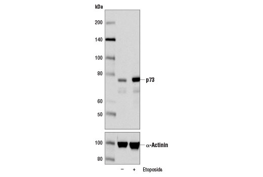 Western blot analysis of HCT 116 cells, untreated (-) or treated with Etoposide #2200 (25 μM, 24 hr; +), using p73 (D3G10) Rabbit mAb (upper) and α-Actinin (D6F6) XP<sup>®</sup> Rabbit mAb #6487 (lower).