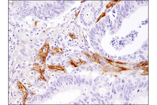 Immunohistochemical analysis of paraffin-embedded human colon carcinoma using CD105/Endoglin (3A9) Mouse mAb.