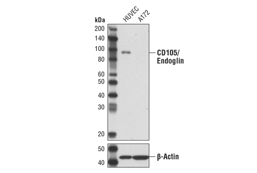 Western blot analysis of extracts from HUVEC cells (+) and A172 cells (-) using CD105/Endoglin (3A9) Mouse mAb (upper) or β-Actin (#8457) (lower) as a loading control.