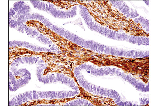 Immunohistochemical analysis of paraffin-embedded human ovarian serous carcinoma using CD105/Endoglin (3A9) Mouse mAb.