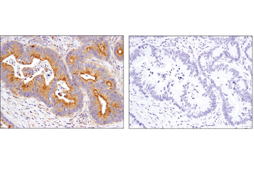 Immunohistochemical analysis of paraffin-embedded human colon carcinoma using LAMTOR5/HBXIP (D4V4S) Rabbit mAb in the presence of control peptide (left) or antigen-specific peptide (right).