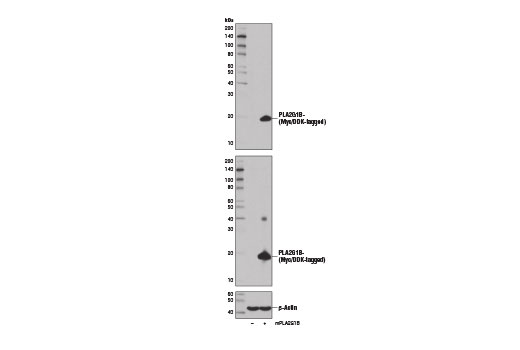 Western blot analysis of 293T cells, mock transfected (-) or transfected with a construct expressing Myc/DDK tagged full-length mouse PLA2G1B protein (mPLA2G1B-MycDDK; +), using PLA2G1B (D1T4C) Rabbit mAb (upper), DYKDDDDK Tag (9A3) Mouse mAb #8146 (middle), and β-Actin (D6A8) Rabbit mAb #8457 (lower).