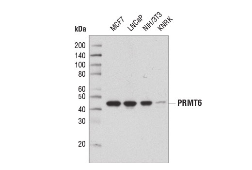 Western blot analysis of extracts from various cell lines using PRMT6 (D5A2N) Rabbit mAb.