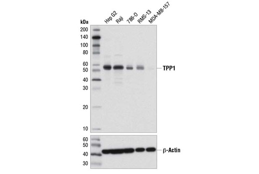 Western blot analysis of extracts from various cell lines using TPP1 (D4E2R) Rabbit mAb (upper) and β-Actin (D6A8) Rabbit mAb #8457 (lower).